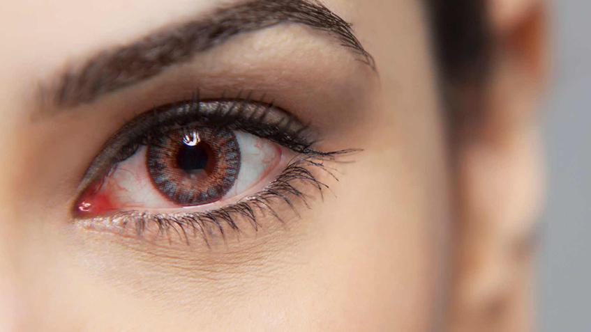 Yazın Göz Hastalıkları Neden Olur